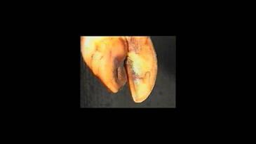 Colocación de Taco ortopédico