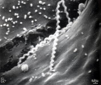 Leptospira spp.