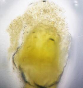 Embrión con hifas del carbón volador de la cebada, Ustilago nuda. Foto Astiz Gasso