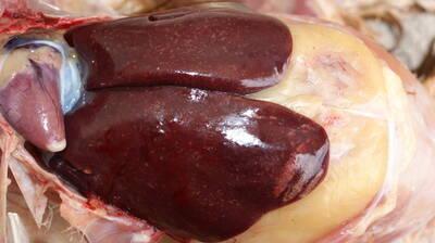 HEPATITS(inflamation con focos neuróticos)