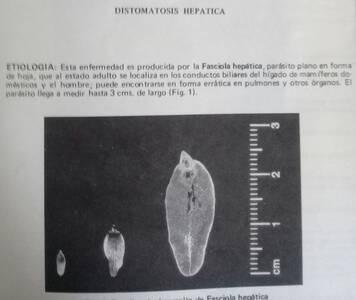 Faciola  hepatica