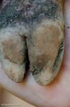 Lesão severa na linha branca