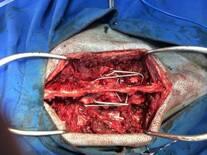 Fijación  de fractura vertebral toracica