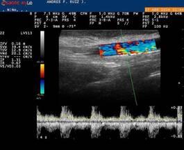 Diagnóstico Reproductivo por Ultrasonido Doppler color.