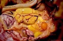 Ovoperitonitis en ponedoras