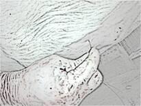 Introducción de aguja curva lateral a línea media
