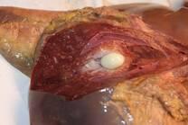Tumor hepático en bovinos