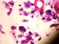 is this Infectious Laryngotracheitis (ILT)?