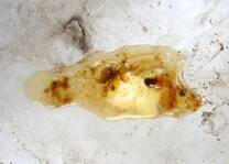 4. Mucoid diarrhoea.