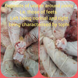 Deposits of urates around joints i.e. those of feets  Left being normal and right being characterised by tophi